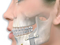 Jaw and Dental Surgery